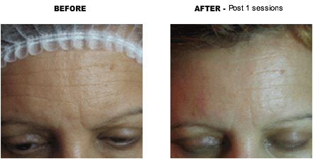 microdermabrasion before & after one session